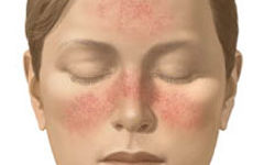 Treating Rosacea