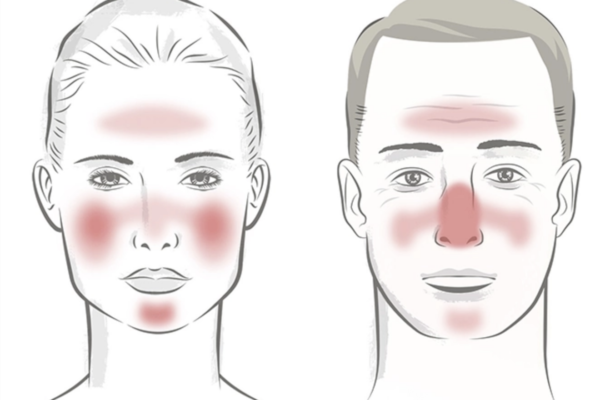 Where Rosacea Appears On The Face